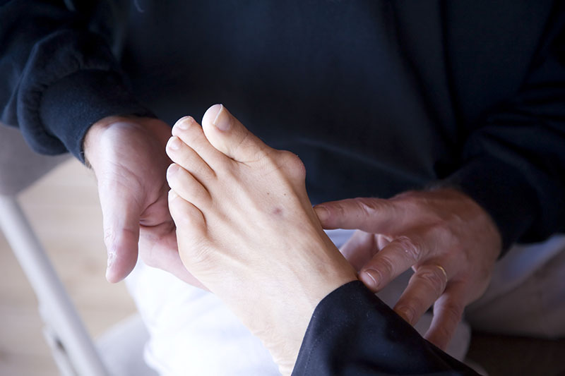 podiatrist examines a bunion