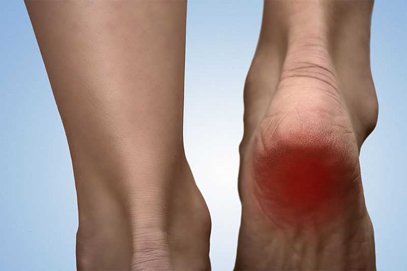 Putting a High-Tech Halt to Heel Pain